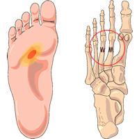 ontsteking bot voet